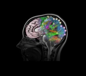view Healthy brain, composite of tractography, MRI and artwork