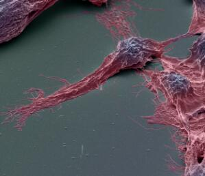 view Human brain cancer stem cells, SEM