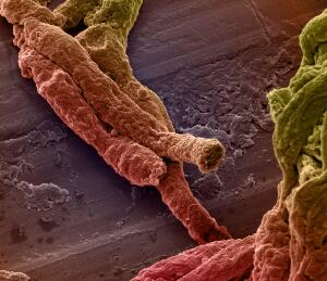 view Mouse brain capillaries, SEM