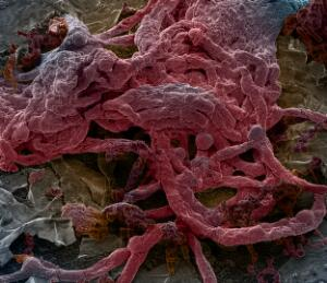 view Mouse brain capillaries, SEM
