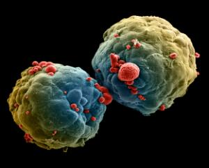 view Breast cancer cell spheroid, SEM