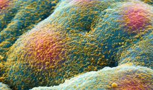 view Prostate cancer cell spheroid, SEM