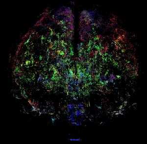 view Healthy adult human brain viewed face on, tractography