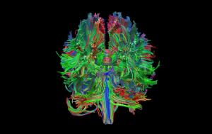 view Healthy adult human brain viewed from behind, tractography