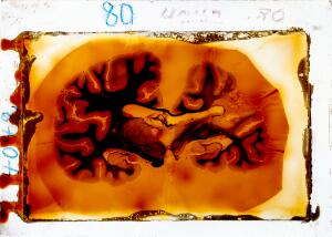 view Antique brain tissue, St Elizabeth's Hospital, Washington DC