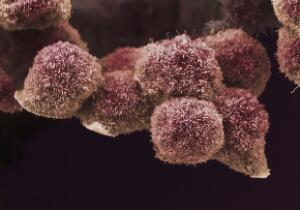 view Pancreatic cancer cells grown in culture, SEM