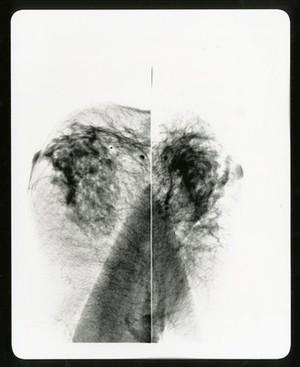 view Healthy breast mammogram, artwork