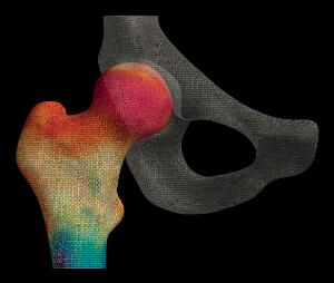 view Cortical bone mapping of hip from computed tomography (CT)