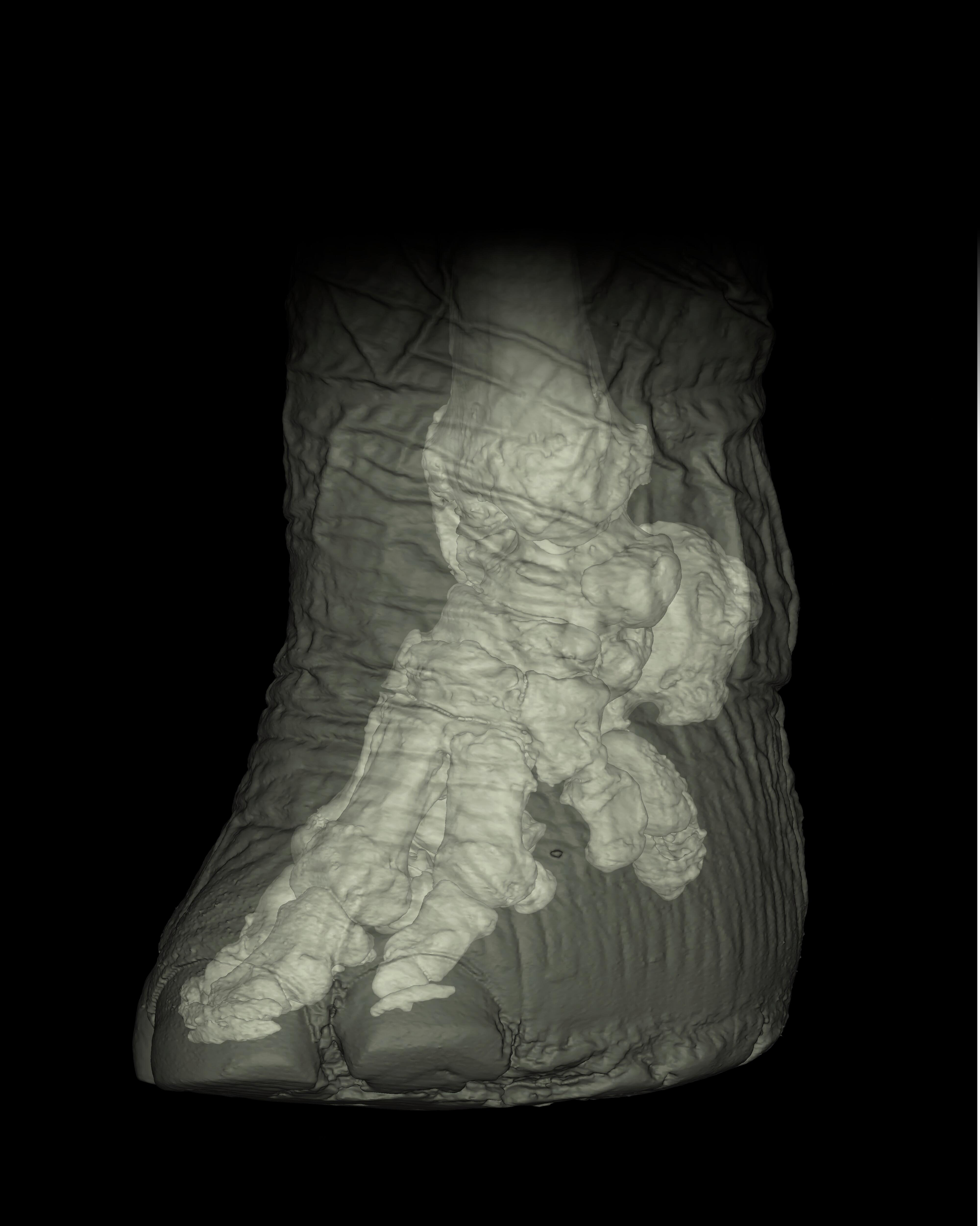 Reconstructed Ct Scan Of Elephant Foot Wellcome Collection