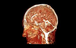 view Microvasculature of human head and brain