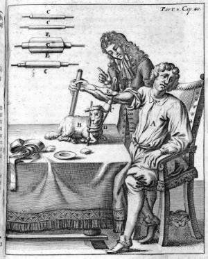 view A early blood transfusion from lamb to man.