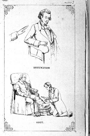 view Rheumatism, gout treated by mesmerism