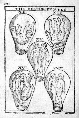 view Birth Figures, 17thC