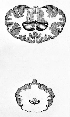 view Sections of brain, sagittel and coronal.