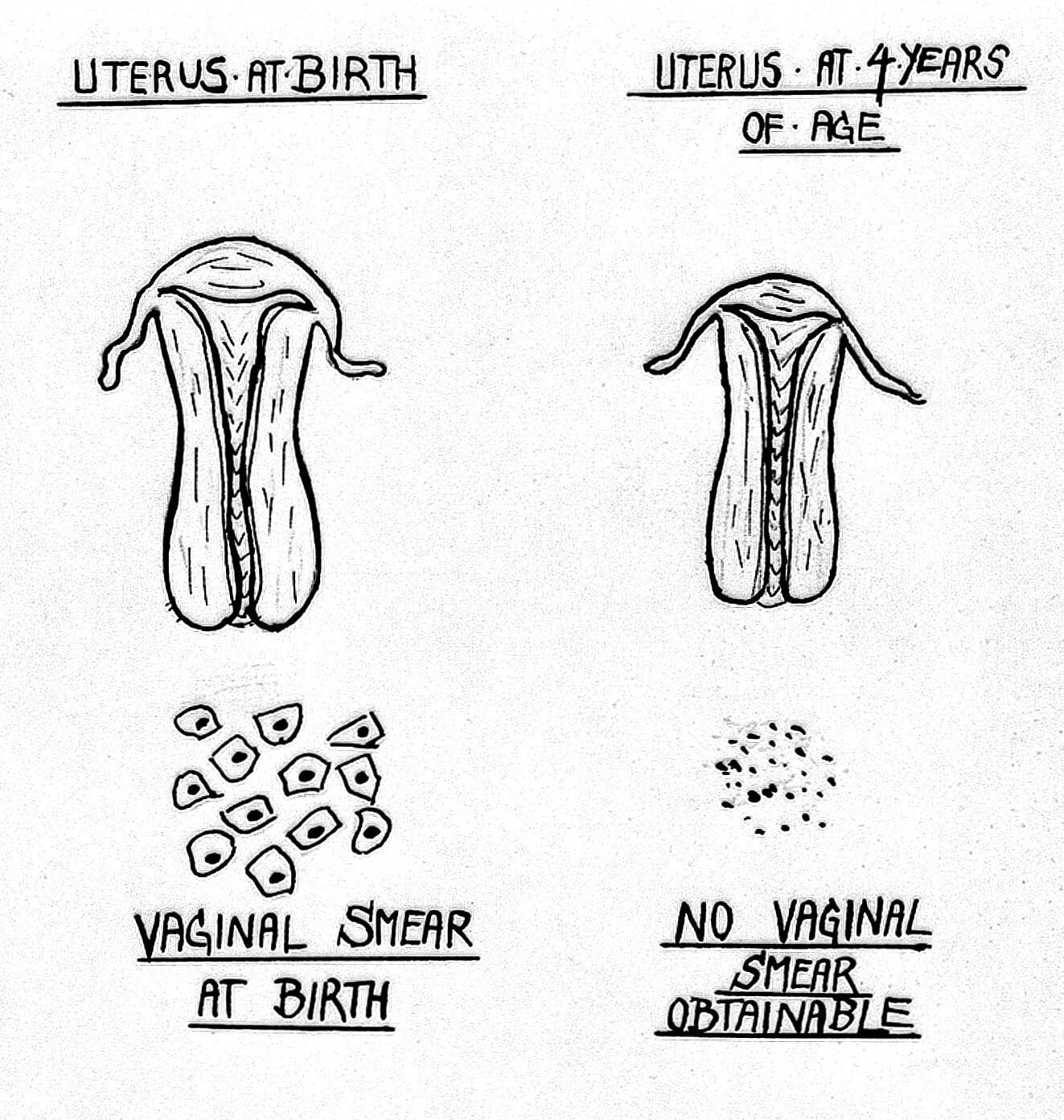 Chart of the uterus at birth and at 4 years  | Wellcome Collection