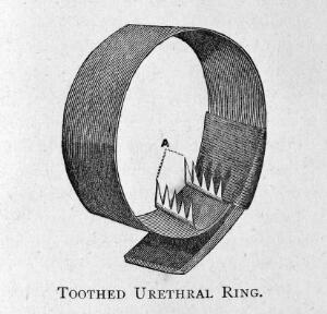 view Toothed Urethral ring for the treatment of masturbation