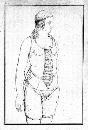 view Woman wearing appliance for treatment against masturbation.
