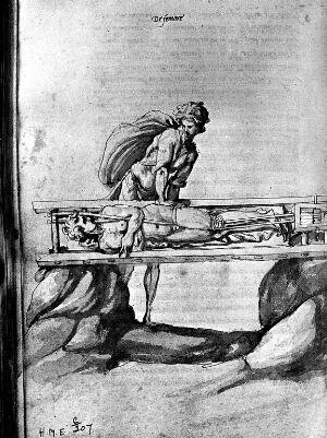 view Primatrice: Reduction of dislocation of thigh. 1544