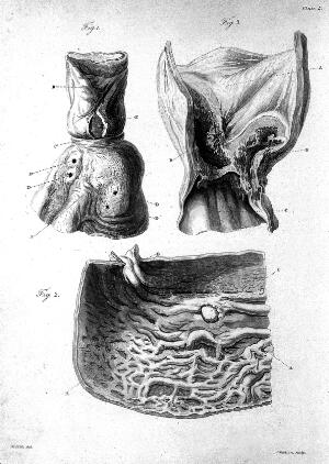 view Matthew Baillie, a series of engravings