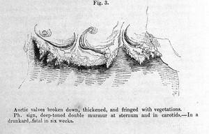 view C.J.B. Williams, 1840: aortic valves