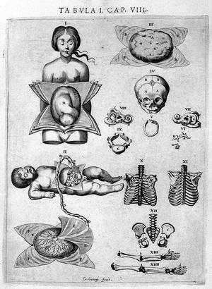 "view Illustrations of foetus, Vesling ""Syntagma"", 1647"
