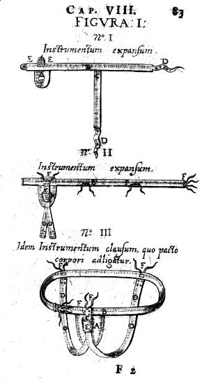 view Trusses for hernia cases, 17th Century