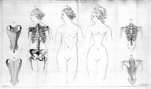 view Distortions of the female rib-cage caused by corset.