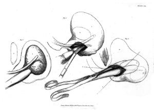 """view plate xx """"Illustrations of the Great Operations of Surgery"""", 1820"""