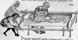 view Reducing dislocated vertebrae in the Moslem Middle Ages.