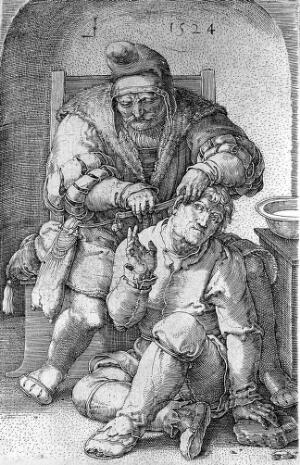 view An itinerant surgeon extracting stones from a man's head; symbolising the expulsion of 'folly'(insanity). Line engraving by L. van Leyden, 1524.
