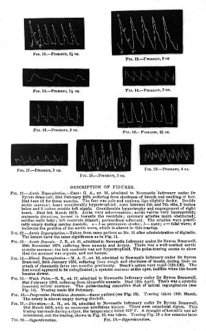 view Tracings of pulse in disease.