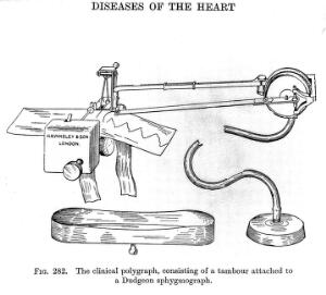 view Dudgeon's Sphygmograph. A clinical polygraph, consisting of a tambour attached to a Dudgeon sphygmograph.