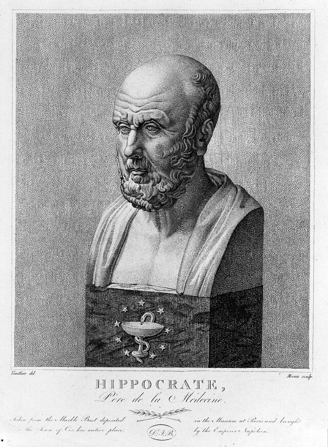 Engraving: marble bust of Hippocrates; by