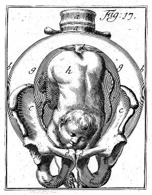 "view Childbirth, from H. Deventer ""Operationes Chirurgicae..."""