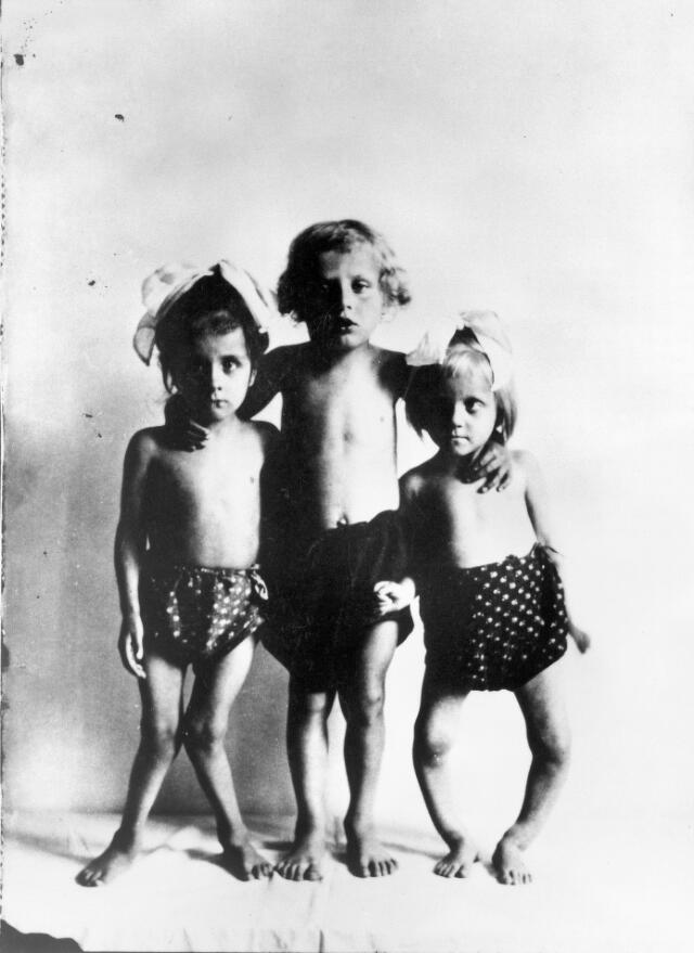 Three children with rickets; anon.,Friends' Relief Mission, Vienna XII, n.d.