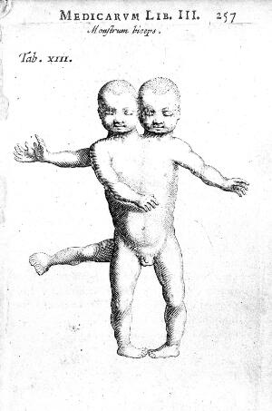 view Conjoined twins