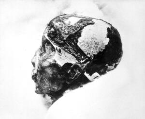 """view A mummified human skull; inscribed on verso """"Tutankh-amen revealed after 3.000 years. Daily Mirror, London, 5th July 1926"""""""