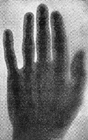view X-ray picture of hand by A.A.C. Swinton, 1896.