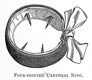 "view J.L. Milton ""Pathology... Spermatorrhoea"": urethral ring"
