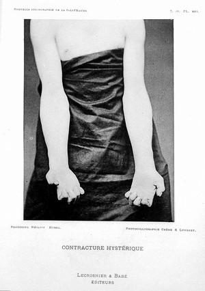 view J. Babinski, 'Contracture hysterique' 1891