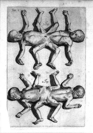 view J. Palfyn, Descriptione anatomique des parties de la femme