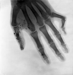 view Bones of a hand. Radiograph, 1900/1904.