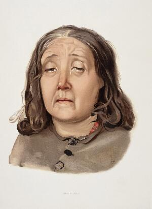 view A woman diagnosed as suffering from melancholia. Colour lithograph, 1892, after J. Williamson, 1890.