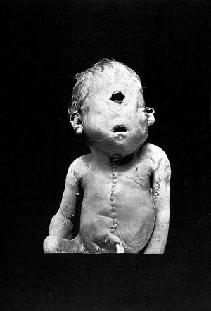 view B. C. Hirst & G. A. Piersol, Human monstrosities.