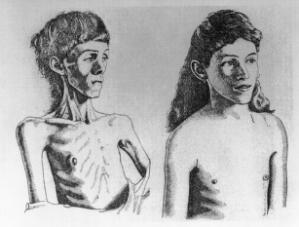 view Clinical Conditions: Anorexia Nervosa