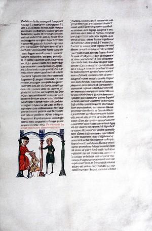 view Trephination: c.1300.