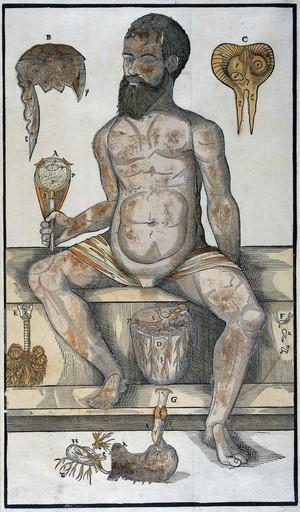 view Anatomical fugitive sheet, male