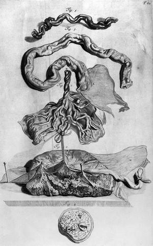 view W. Cowper, Anatomy of Humane Bodies, 1698