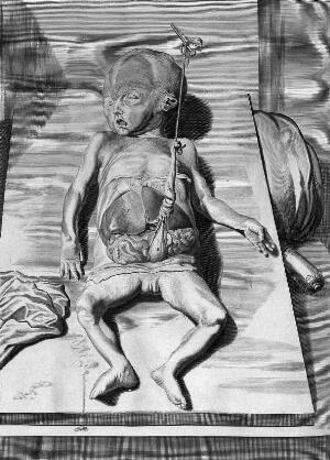 view W. Cowper, Anatomy of Humane Bodies, 1698