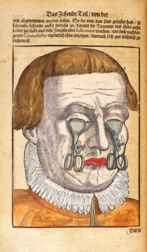 view Bartisch, Ophthalmodouleia, 1583